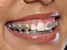 What to expect once your braces are removed
